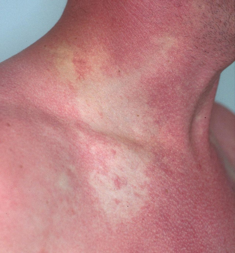 Food allergy symptoms skin rash for Allergic reaction to fish