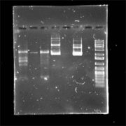 A-gel-electrophoresis-with-unclear-samples-that-have-multiple-bands.-Credit–Chegg
